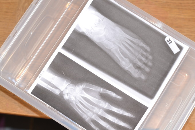 lightbox used to view an x-ray for a doctor role play game