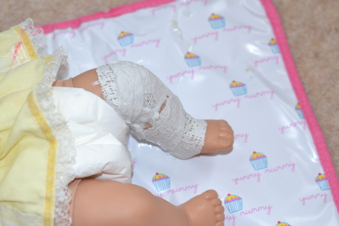 a doll with a plaster cast on its leg