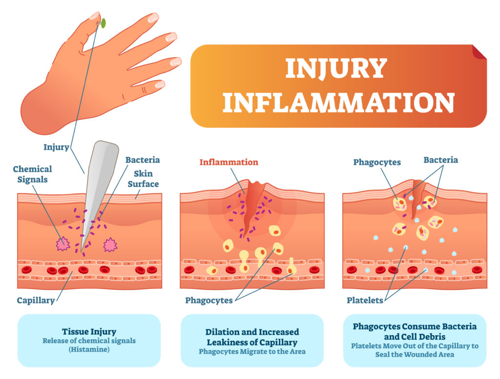 Immune response after injury - what is a scab