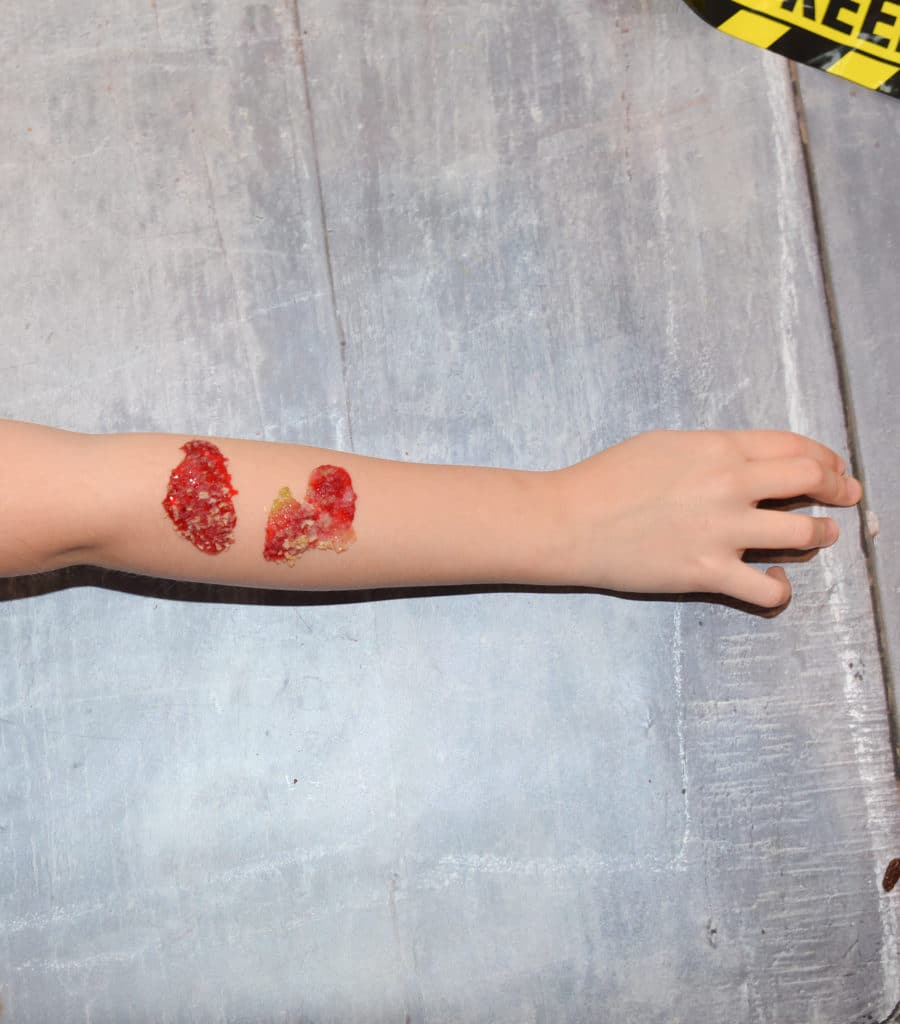 Scab made from jelly