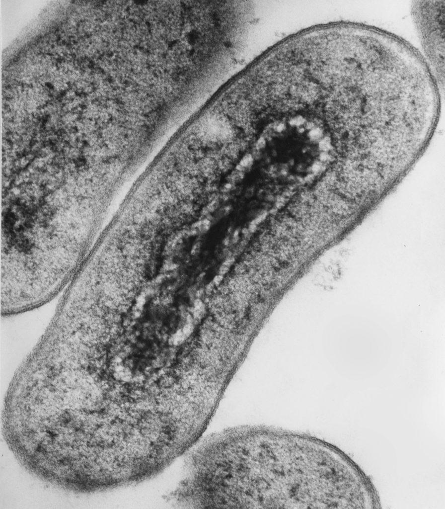 E. coli as seen under an electron microscope